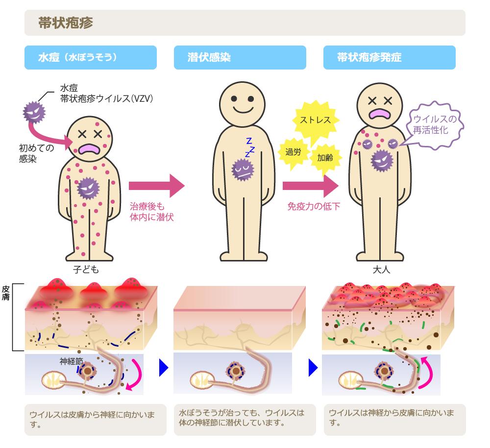 帯状 疱疹 安静 期間
